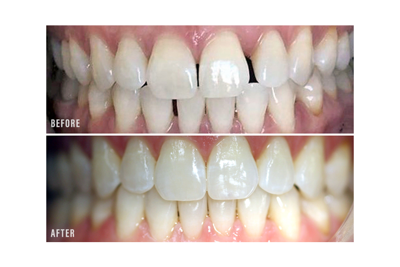 Anjum A. Ansari DMD General & Cosmetic Dentistry - Before After Image 01
