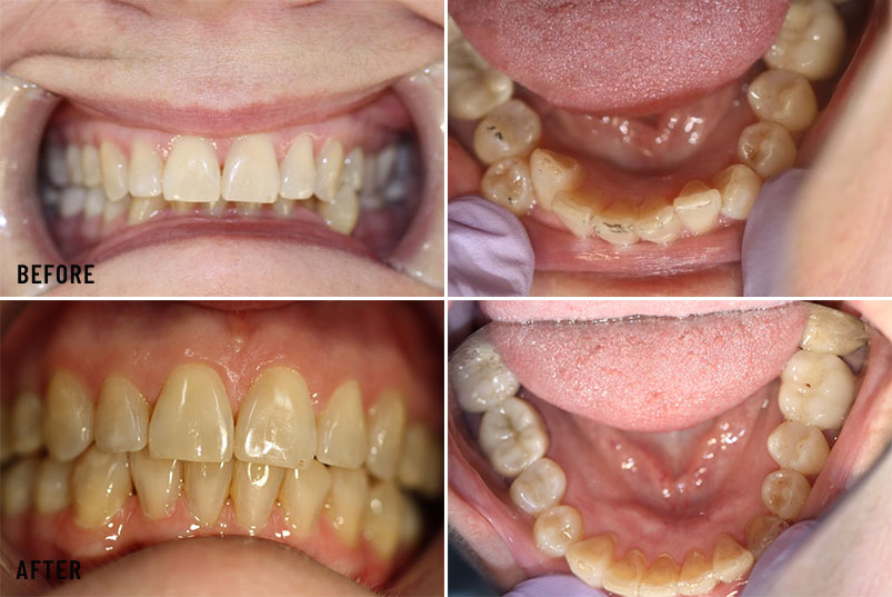 Anjum A. Ansari DMD General & Cosmetic Dentistry - Before After Image 02