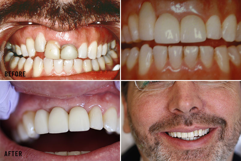 Anjum A. Ansari DMD General & Cosmetic Dentistry - Before After Image 03