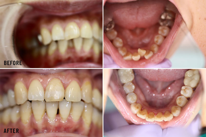Anjum A. Ansari DMD General & Cosmetic Dentistry - Before After Image 04