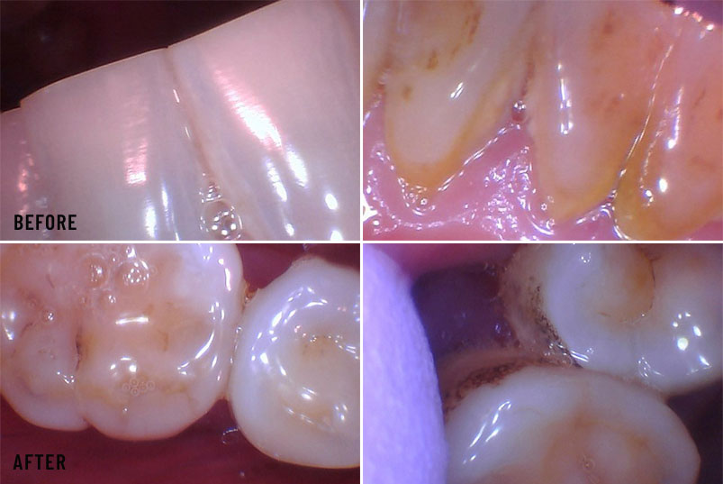 Anjum A. Ansari DMD General & Cosmetic Dentistry - Before After Image 05