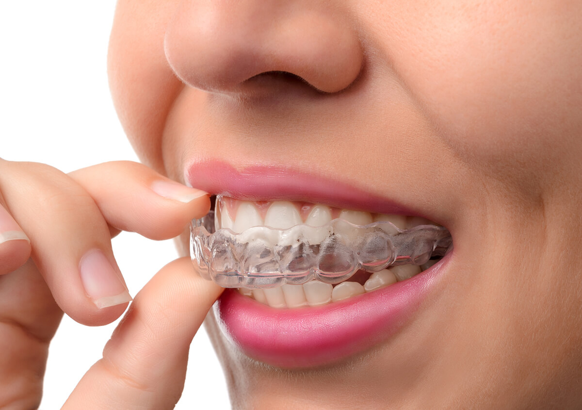 Invisalign® Clear Aligners: The Comfortable Path to Straighter Teeth, without Braces, in Boston, MA Area