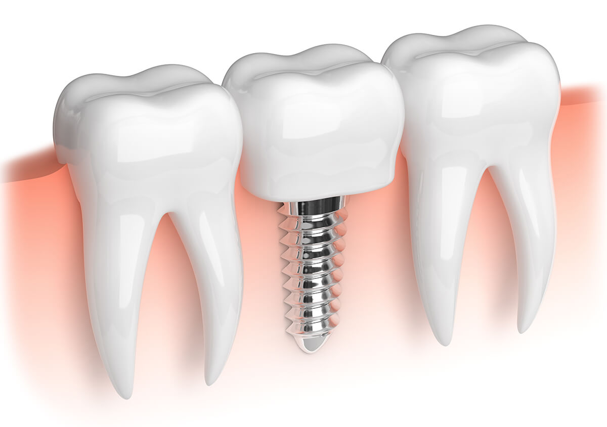 Treatment for Missing Teeth May Include Dental Implants with Boston, MA Area