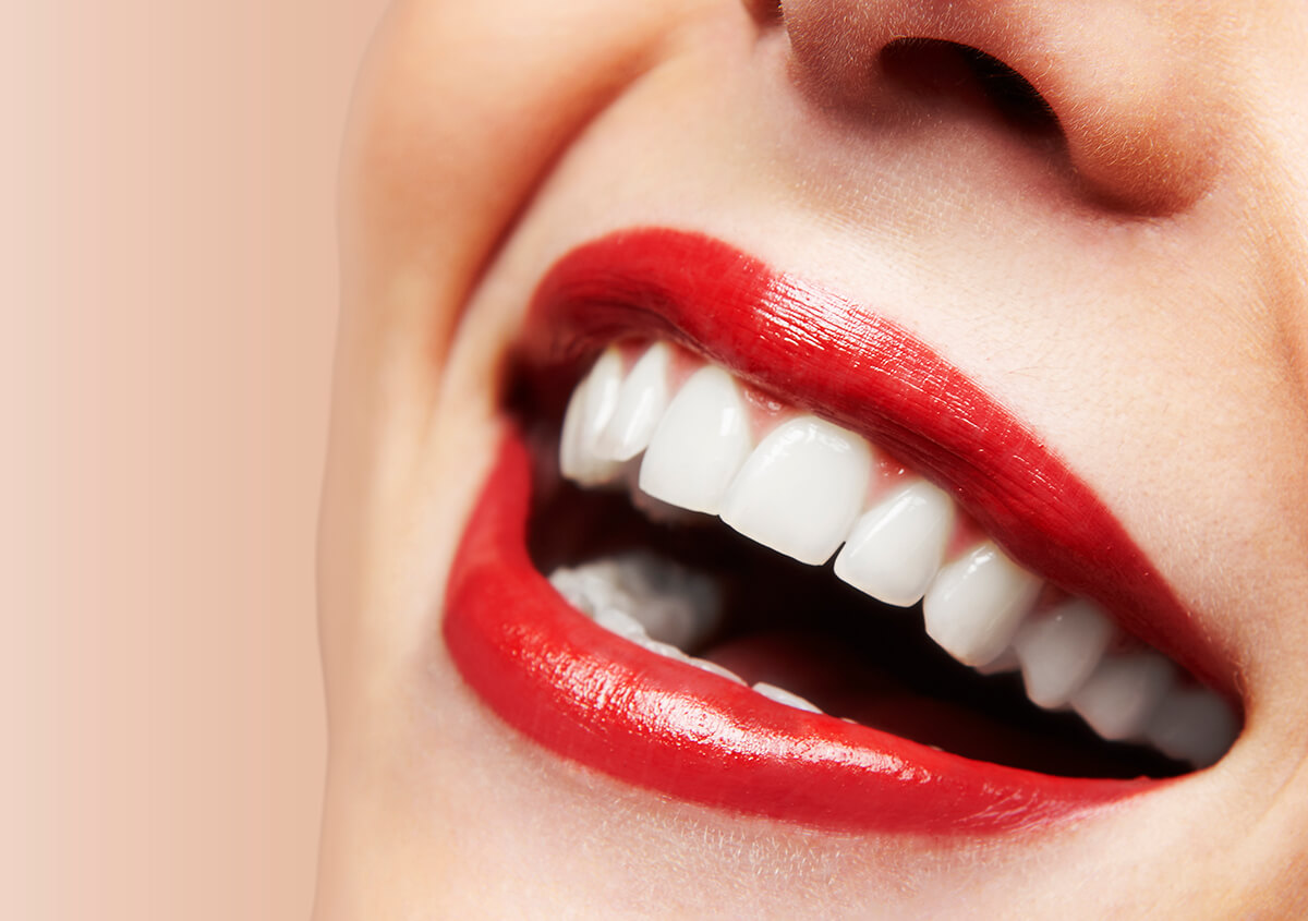 Porcelain Veneers in Boston MA and Their Impact on Your Smile